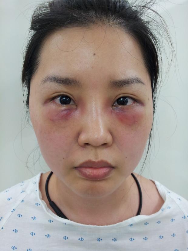 韓國PAN去黑眼圈術後