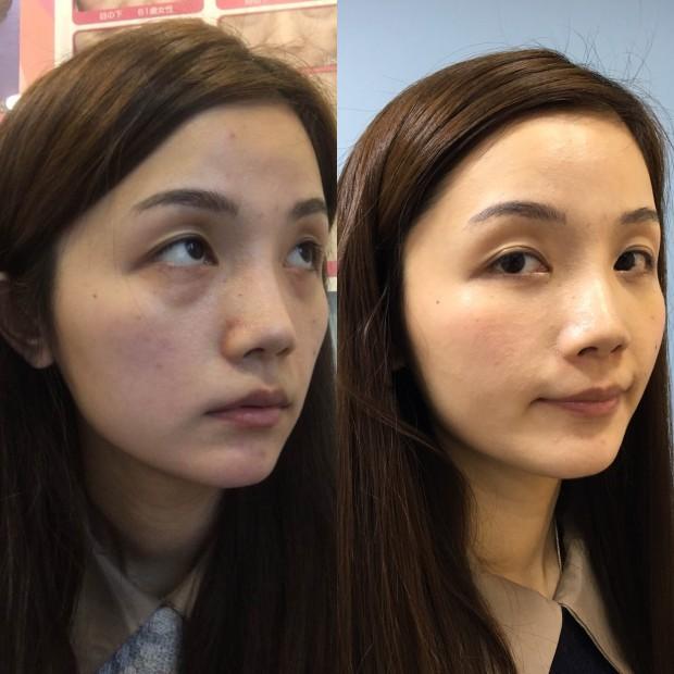 這是術後5天的對比,感覺FGF真的在增長,凹陷慢慢被填起來了