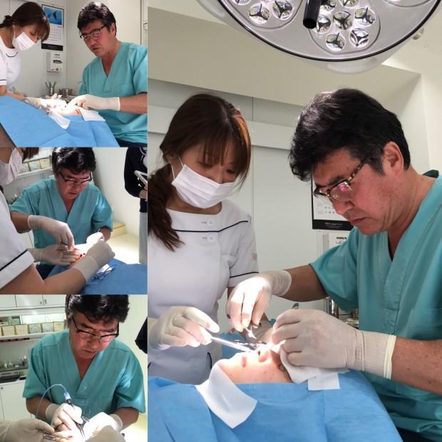 飯塚醫生很有親和力,技術超厲害,竟然不到20分鐘就全部完成!快過韓國!
